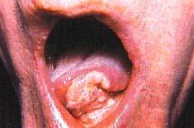 mouthcancer1